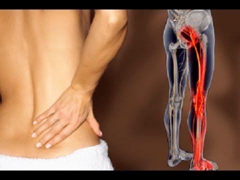 Ischiasschmerzen in 7 Tagen selbst behandeln  Was tun und welche Übungen  helfen bei Ischialgie