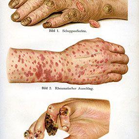 Identifying Rheumatoid Arthritis Rash: Livedo Reticularis