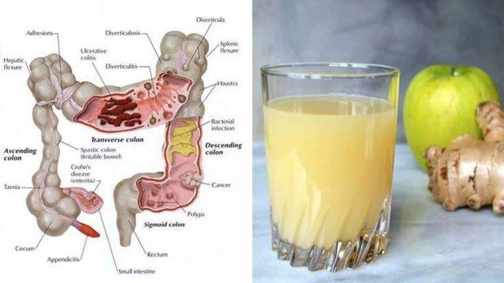 Le jus de nettoyage du côlon à 3 ingrédients : Comment les pommes, le gingembre et le citron peuvent expulser des kilos de toxines de votre corps - Santé Nutrition