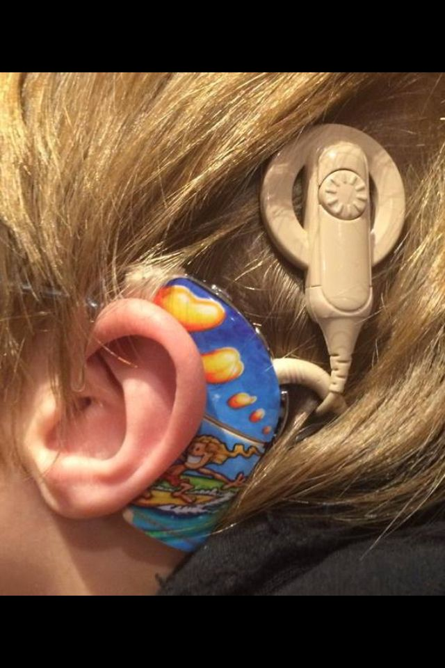 Which Types of Hearing Aids are Best?
