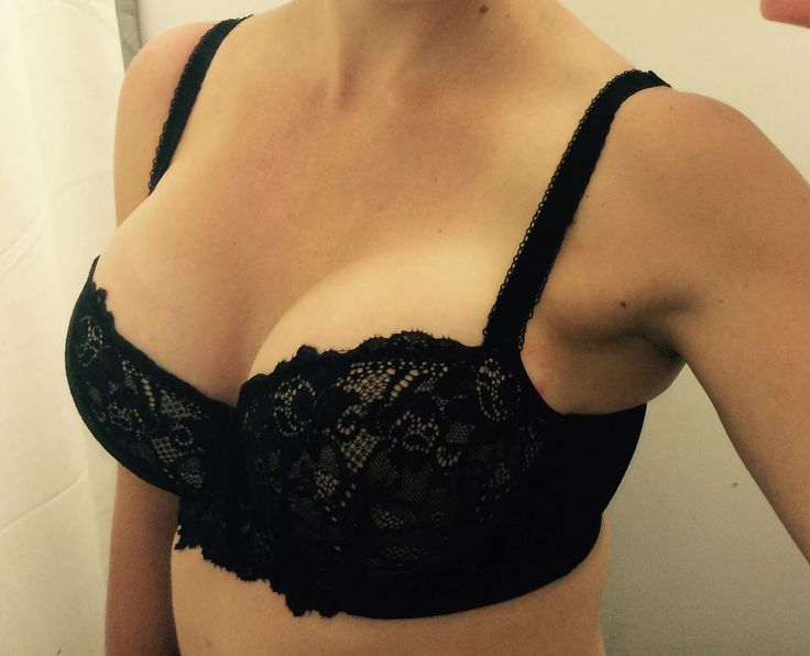Sarah is 8 weeks post op in this gorgeous photo. She chose ...