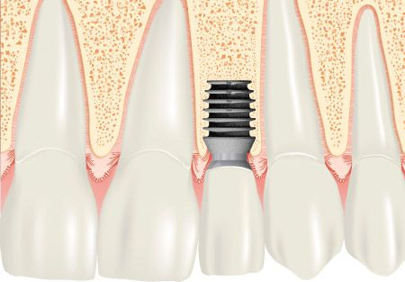 #Ultrakurze #Implantate auf dem Vormarsch ? http://www.zahn-zahnarzt-berlin.de/deutsch/news/ultrakurze-implantate.html