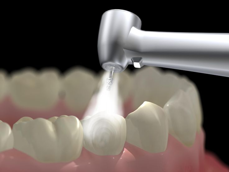 Dental filling is one of many dental restorative treatments to make your smile better !! At Preferred Family Dentistry Las Vegas Dr. J will explain to you the step-by-step procedure of a Dental Filling. !! http://www.drjlv.com/understanding-the-procedure-of-dental-fillings/