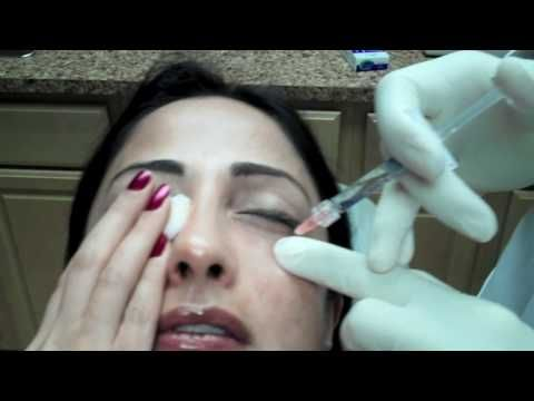 This article is about tear trough fillers and explains what you can expect if you choose to have this type of cosmetic filler. It includes a video of Restylane Injection to Lower Eyelid Tear Troughs to Reduce Dark Circles from Chevy Chase Maryland - I found it informative and interesting - think I might just stick to my favorite concealer though!