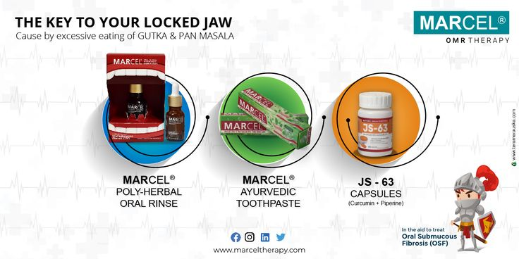 The Key to your Locked Jaw Therapy, Oral, Medicine
