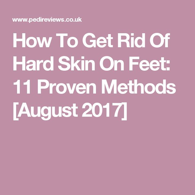 How To Get Rid Of Hard Skin On Feet: 11 Proven Methods [August 2017]