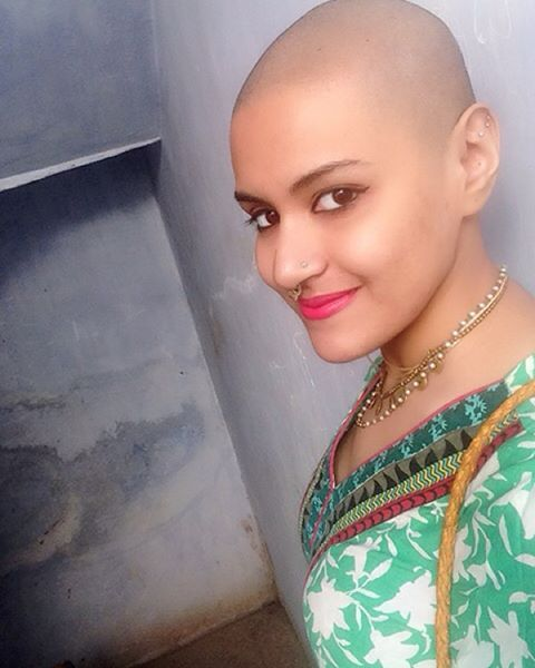 Bald girl blog