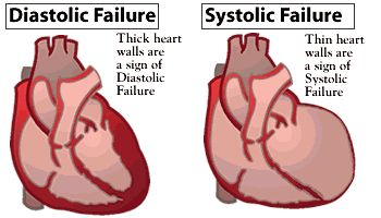 Systolic heart failure | ภาพจาก http://www.afmc.org/Graphics/consumer/healthinfo ...