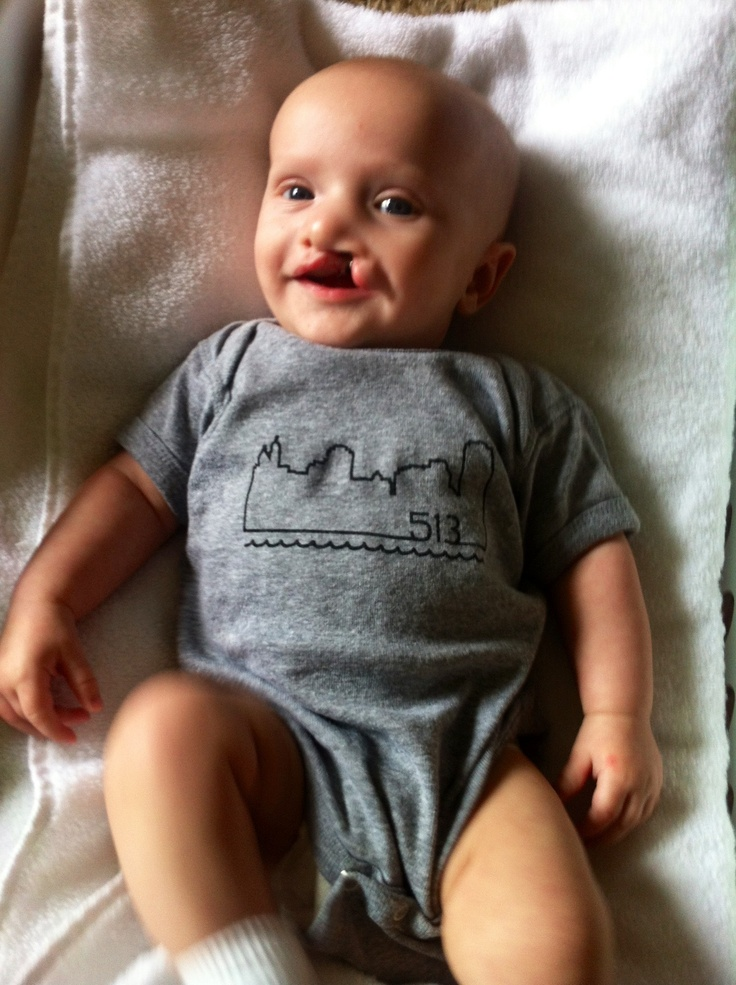 22 best cleft lip and palate images on pinterest cleft
