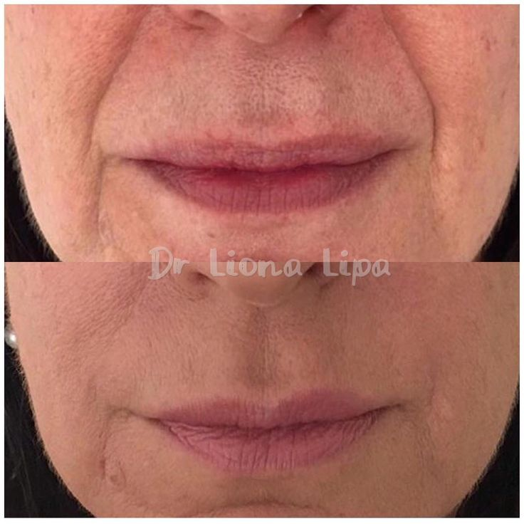 The nasolabial fold is the deep crease running from either side of the nose down towards the corners of the mouth.  Also known as a smile line this crease is created by repeated movement of the mouth. Using 1.0ml of dermal filler(0.5 ml to each nasolabial fold) we have softened this patient's nasolabial folds #dermalfillers #fillers #fillersinjection #nasolabialfolds #nasolabialfiller #dental #dentallife #dentalteam #dentalwork #cosmeticdentistry #aesthetic #estheticdentistry #dentist…
