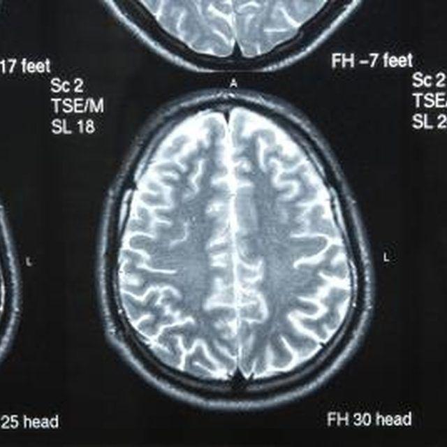 Symptoms of White Matter Brain Disease