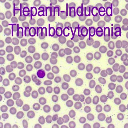 I needed this last week.  I'm still not sure that I got my point across to the nurse and PA.  Medical Laboratory and Biomedical Science: Heparin-Induced Thrombocytopenia