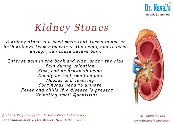 From Within The Kidneys And Might Travel Down The Urinary Tract