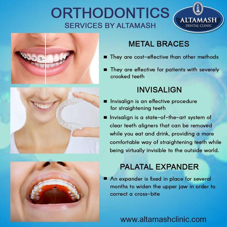 Orthodontics is the branch of dentistry that specializes in the movement of teeth using braces and removable appliances to make the corrections involving straightening of the teeth and improving the bite. It can provide a healthy attractive smile for many years. Visit Altamash Dental Clinic for your Orthodontics treatment now! For more information visit our website http://www.altamashclinic.com/procedures-and-treatments/orthodontics #AltamashDentalClinic #Orthodontics #Invisalign…