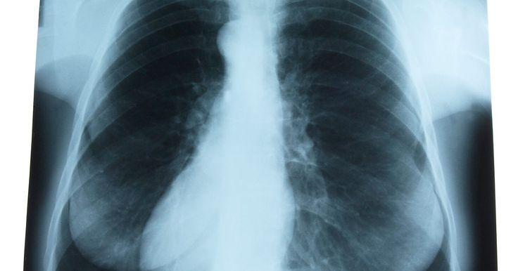 Exercícios para fortalecer o pulmão. A respiração é a forma como o oxigênio entra na corrente sanguínea. É também a maneira de alguns resíduos, como o álcool, serem removidos do sangue. À medida que envelhecemos, no entanto, nossos músculos tornam-se mais rígidos e a utilização de nossa capacidade pulmonar é reduzida. Algumas pessoas são afetadas por condições crônicas que tornam a ...