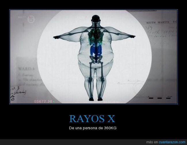 ser_de_hueso_ancho_ya_no_es_excusa