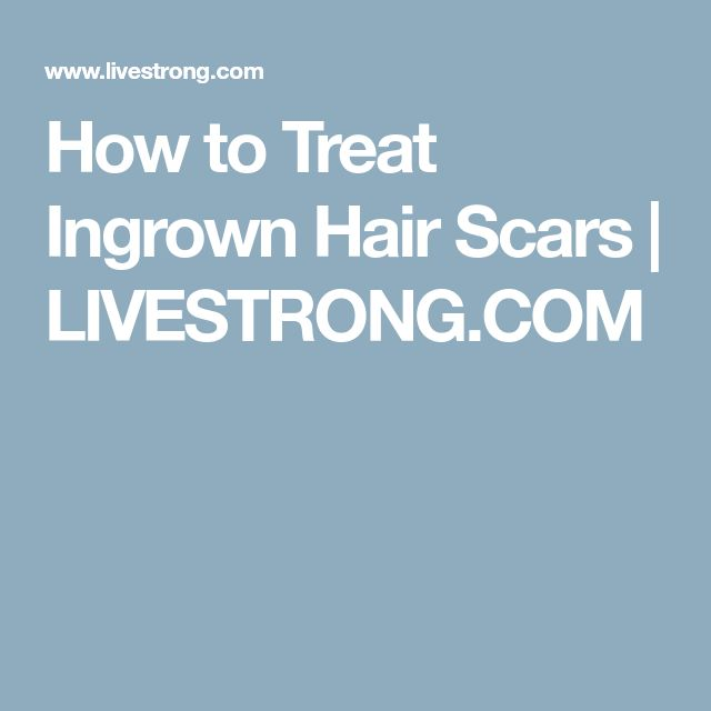 How to Treat Ingrown Hair Scars | LIVESTRONG.COM