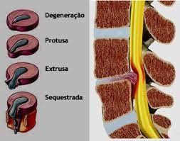 Clínica de Massagem Terapêutica e Quiropraxia em São Jose SC, Massoterapia: Quais os Sintomas da Hérnia de Disco?  Tratamento ...