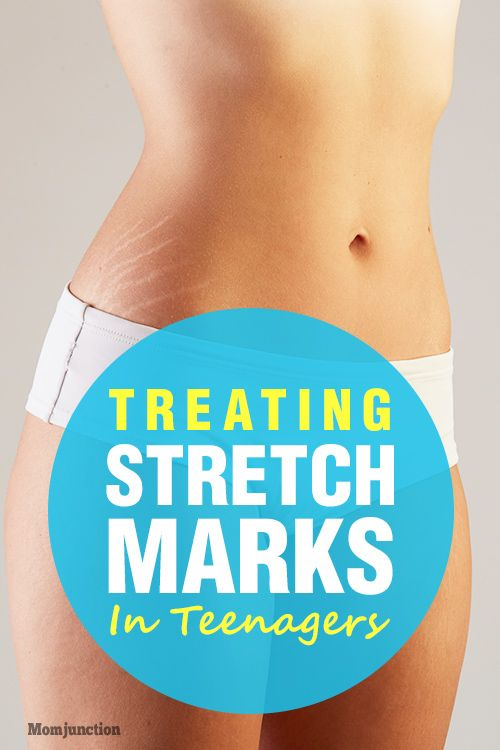 717044c5c5356fc082a2b0d2645a4823 - How To Get Rid Of Stretch Marks On Thighs Teenager