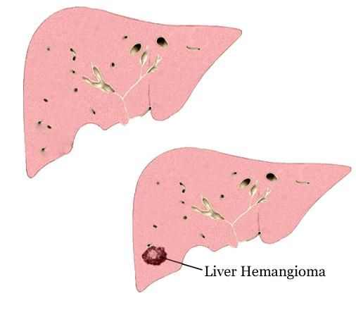 Liver hemangioma, also known as hepatic hemangioma is a benign mass, created by tangled blood vessel in the liver. Find out all about it in detail..... http://www.natural-health-news.com/liver-hemangioma-hepatic-hemangioma/