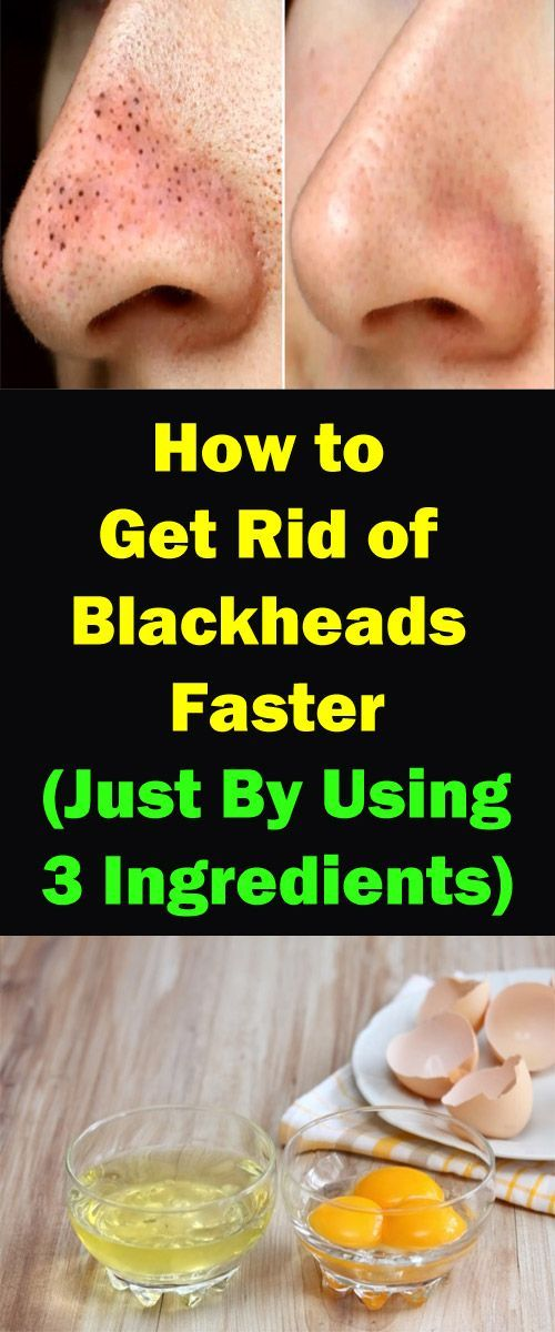 Get Rid of Blackheads with this 3 in 1 Egg Mask! -…