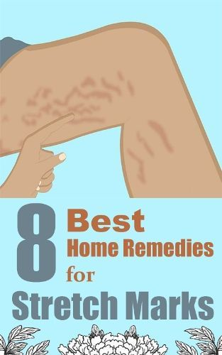 8 Best Home Remedies For Stretch Marks?? #goodtoknow #tips #howto
