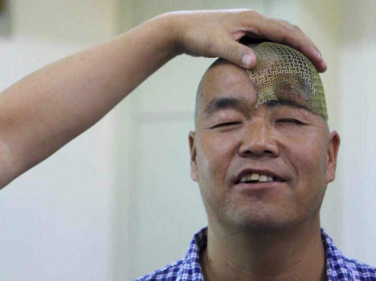 24 heures en images Quelques jours après l'annonce de la greffe d'une vertèbre sur mesure produite par une imprimante 3D sur un enfant de 5 ans en Chine, cette technologie intègre le domaine de la reconstruction faciale. Toujours en Chine, à l'hôpital de Xi'an le 27 août, un médecin montre le maillage en titane réalisé par une imprimante 3D qui sera greffé sur le visage de son patient. La prothèse comblera la partie manquante de son front , blessé dans sa chute du troisième étage d'un…