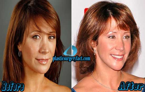 Cheri Oteri Plastic Surgery Before and After | http://plasticsurgeryfact.com/cheri-oteri-plastic-surgery-before-and-after-photos/