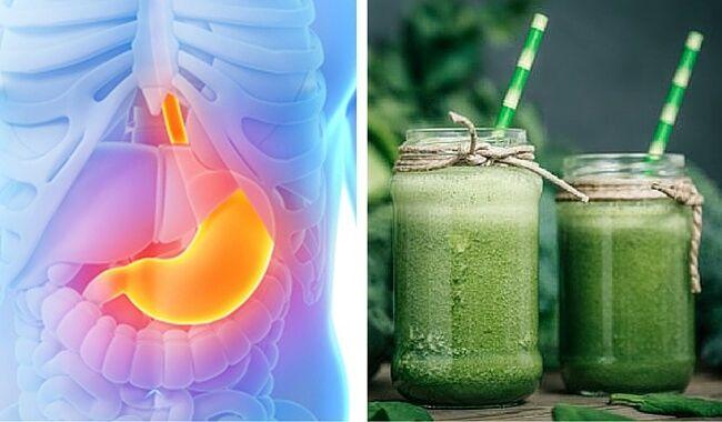 Acaba Con La Acidez Gástrica En 15 Días Acidez Acidez De Estómago ácido Estomacal