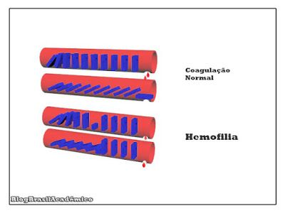 Hemofilia: A esperança de cura  Médica apresenta uma possível forma de tratamento para correção de defeitos genéticos como é o caso da hemofilia.  Estudo inédito apresentado durante o 56º Congresso Americano de Hematologia mostra que é possível corrigir defeitos genéticos como a hemofilia. A hemofilia é um grupo de doenças genéticas hereditárias que afetam a capacidade do corpo em controlar a circulação do sangue ou coagulação o que faz com que os portadores dessa moléstia tenham propensão à…