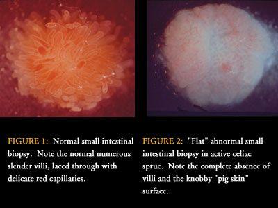 Small Bowel Biopsy image