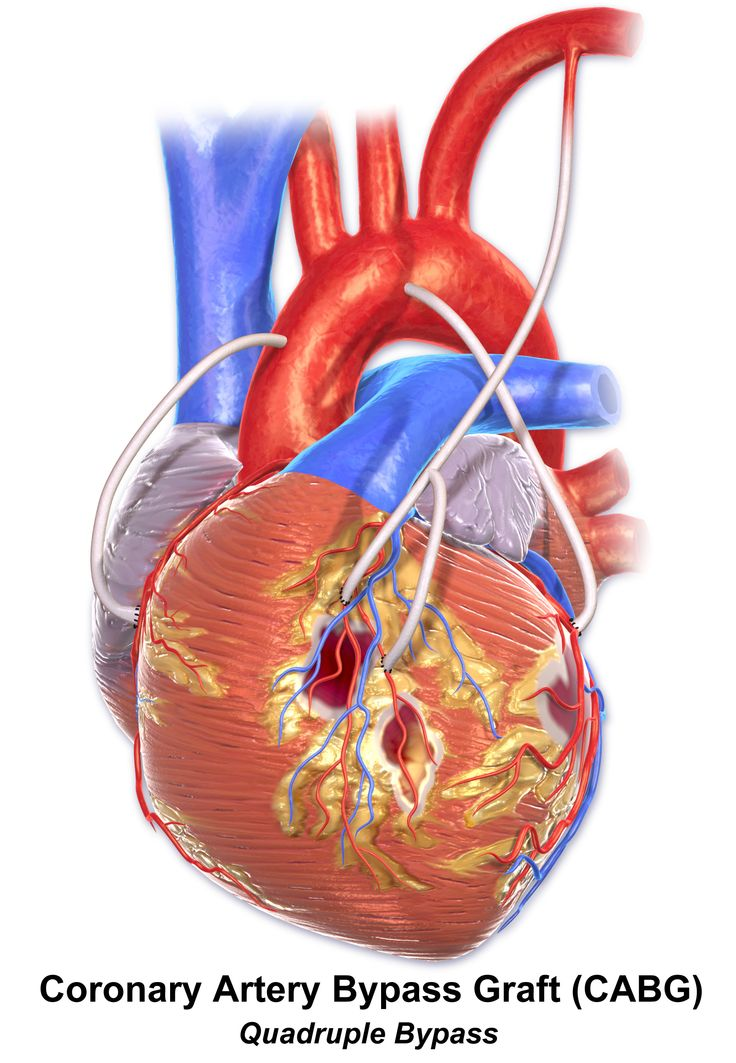 coronary artery bypass surgery and heart This procedure is also called coronary artery bypass grafting (cabg)  (for  open-chest surgery, a heart-lung machine may be used to circulate the blood and  to.