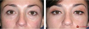 Les CosMedics provides you cosmetic and non cosmetic treatment, laser eye treatment in Delhi India, with modern laser technology in Delhi at amazing rates.