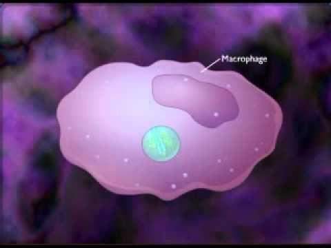 Delayed Type IV Hypersensitivity