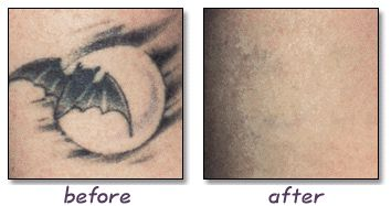 For a pain free and natural approach to tattoo removal check out http://tattoo-qm50hycs.canitrustthis.com