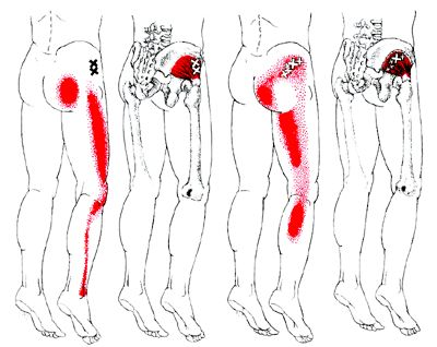 """Sciatica-""""False"""" sciatica that could be misdiagnosed if the doctor isn't observant of which muscle is at fault. Pinned by SOS Inc. Resources @Rebecca Porter Inc. Resources http://pinterest.com/sostherapy."""