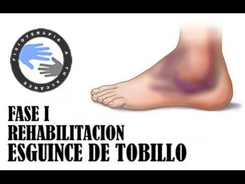Esguince de tobillo, rehabilitacion fase 1 / Fisioterapia a tu alcance - YouTube