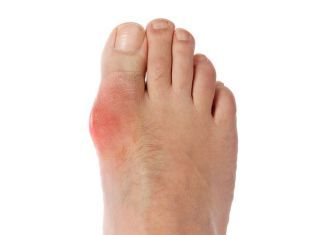 Gout (Gouty Arthritis) – Spiritual Meaning, Causes and Healing