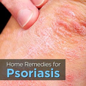 Natural Remedies To Ease Psoriasis