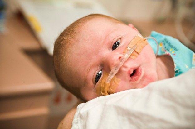 Erken Doğum Nedenleri #erken #doğum #bebek #bakım #sağlık #prematüre #sağlık