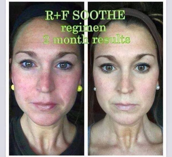 Rodan + Fields SOOTHE your irritated skin! I love before and after photos! Check out the products at smithlindsay.myrandf.com or message me at smithlindsay80@gmail.com for details.