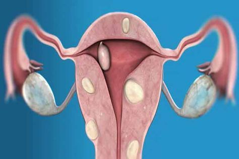 Renunțați la operație și folosiți asta împotriva fibromului uterin! - Secretele.com