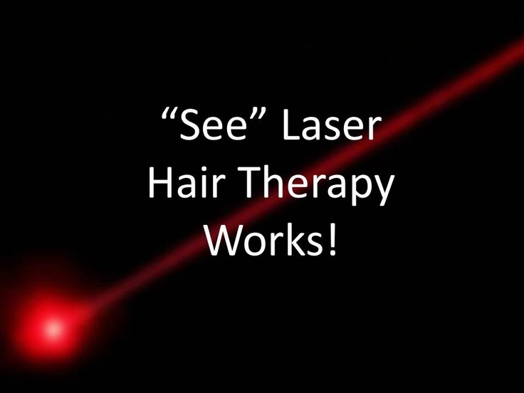 """""""See"""" Laser Hair Therapy Works!  Laser Hair Therapy Combined With Our Multi – Therapeutic Hair loss Programs Give Results You Need for your hair loss worries."""