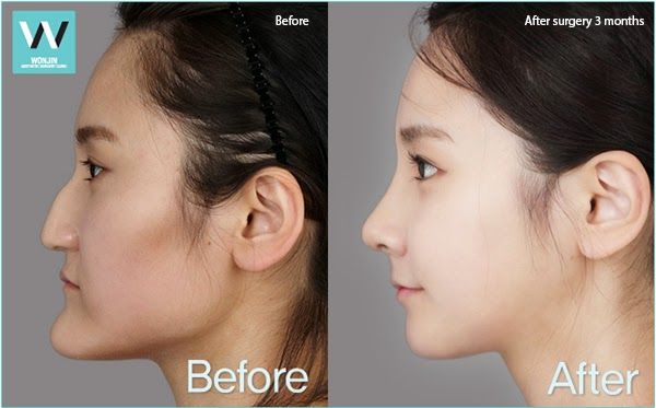 two jaw surgery plastic surgery makeover before and after