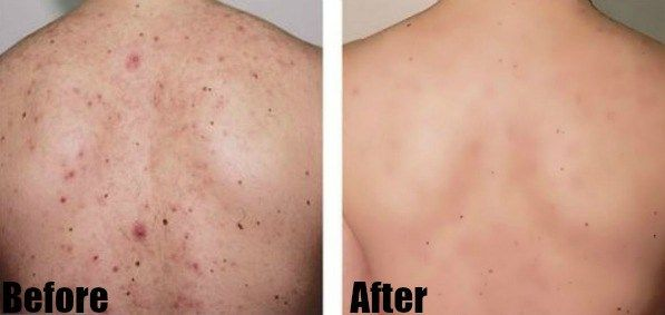How To Get Rid Of Back And Chest Acne Overnight