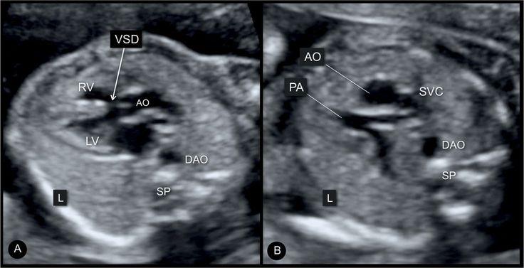 Tetralogy Of Fallot Pulmonary Atresia With Ventricular Septal