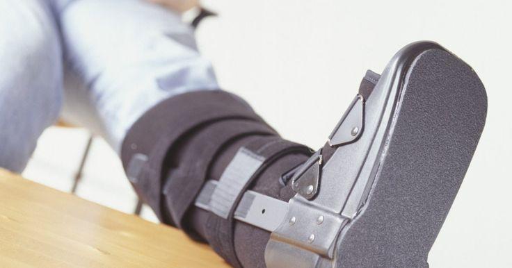 Cómo saber si te fracturaste un hueso de la pierna. Hay tres huesos principales en la pierna: el fémur, la tibia y el peroné. El fémur es el hueso más largo en la parte superior de la pierna. La tibia y el peroné son los dos huesos más pequeños que están situados en la parte inferior de la pierna. Romperse cualquiera de estos huesos puede ser muy doloroso, aunque mucha gente no está segura de si ...