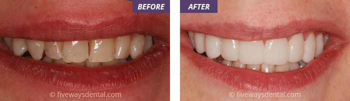 Check out these lovely teeth! Whitening can be a great gift in the build up to Christmas so make sure you give us a call on 0151 722 5843 to get yourself booked into Childwall's very own Fiveways Dental Practice!