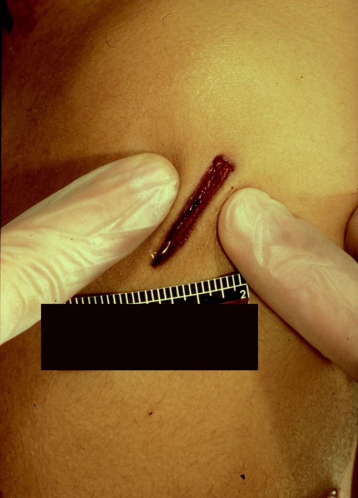 Stab wound with edges drawn together to demonstrate that one end of the wound is squared whilst the other is sharp (i.e. caused by a single-edged blade)
