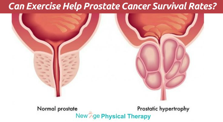 Can Exercise Help Prostate Cancer Survival Rates?  #ProstateCancerSurvival #PhysicalTherapy #Fitness #Health #NewAgePT